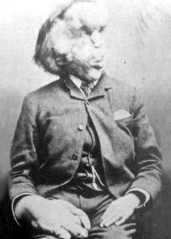 Joseph Merrick cilvēkszilonis... Autors: augsina Pasaules dīvainākie cilvēki.