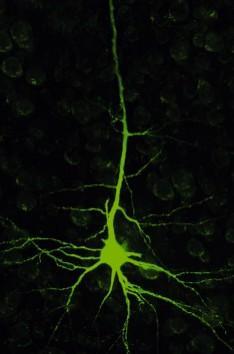 Šis ir neirons jebšu nervu... Autors: Raitons skeletons Iz zinātnes