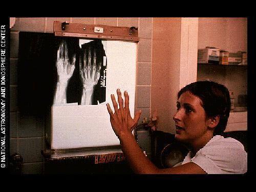 Cilvēka plaukstas rentgena... Autors: ainiss13 Kosmosā nosūtīts ziņojums citplanētiešiem