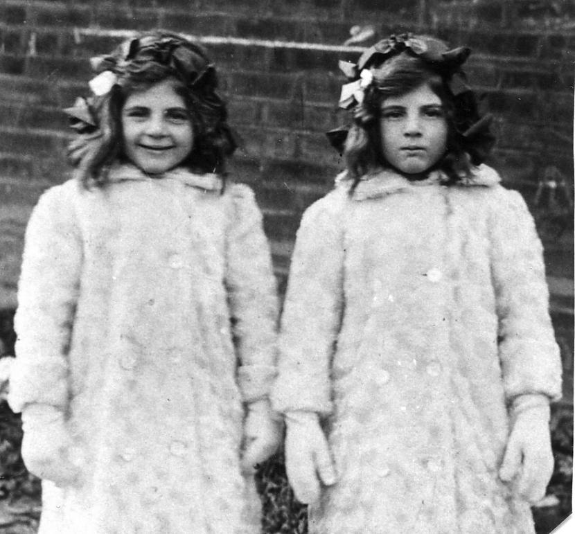 Vai identiski dvīņi ir gandrīz... Autors: ElWeeD Interesanti fakti par dvīņiem