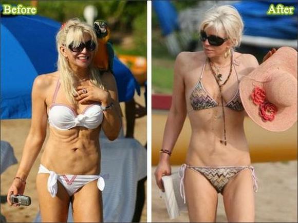 Courtney Love Mazliet bet... Autors: burnenergy Plastiskās operācijas