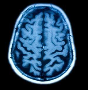 Diennaktī cilvēka smadzenes... Autors: ML Neticami, bet fakts - 7. Beigas.