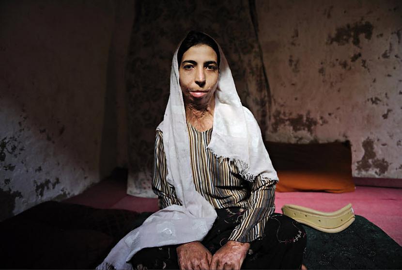 Zahra21 gadsZahra mēģināja... Autors: Nacionālists Pašsadedzināšanās upuri!