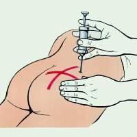 Sagatavojiet visu... Autors: Tim3D Kā veikt injekciju sev?