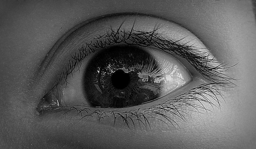 Draudzene fotogrāfēja manu aci... Autors: Fosilija Foto