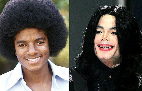 Michael Jackson Autors: druvalds Neizdevušās plastiskās operācijas