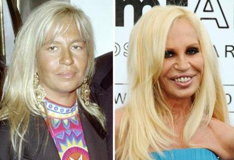Donatella Versace Autors: druvalds Neizdevušās plastiskās operācijas