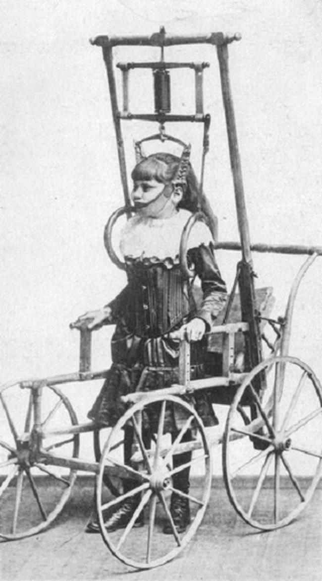 Ratiņkrēsls Doktora Klarka... Autors: kaķūns Baisas ārstēšanas metodes, kuras kādreiz likās labas