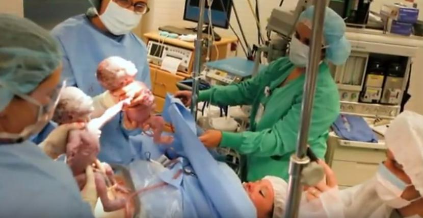 Bērna piedzimscaronana tas ir... Autors: zeminem Kad viņi nāca pasaulē, ārsti neticēja savām acīm! Paskatieties uz viņu rociņām!