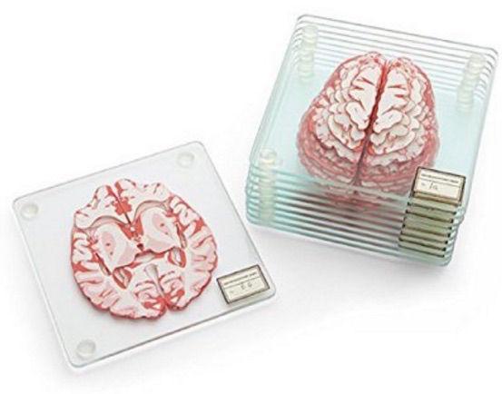 Smadzeņu paliknīscaroni 10 Nāk... Autors: Fosilija Ziemīšos nav idejas dāvanām?