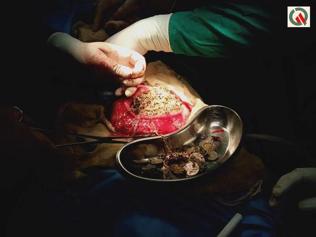 Operācijas laikā ķirurgi no... Autors: Fosilija No meitenes izvilka visu juvelierizstrādājumu veikalu - 1,5 kg zelta kuņģī