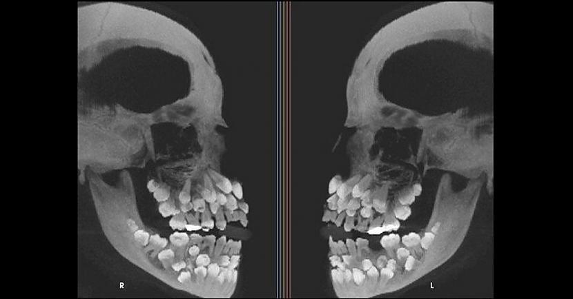 Galvas rentgens cilvēkam kuram... Autors: The Diāna 18 forši rentgeni redzesloka paplašināšanai