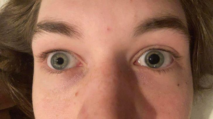 Dažādi acu zīlīscaronu... Autors: Lestets Dažādas cilvēku ķermeņa īpatnības, kas padara tevi īpašu